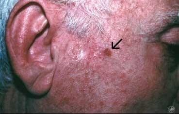 Skin Cancer Diagnosis And Treatment Victoria Cavalli Md Berkshire County North Adams Ma